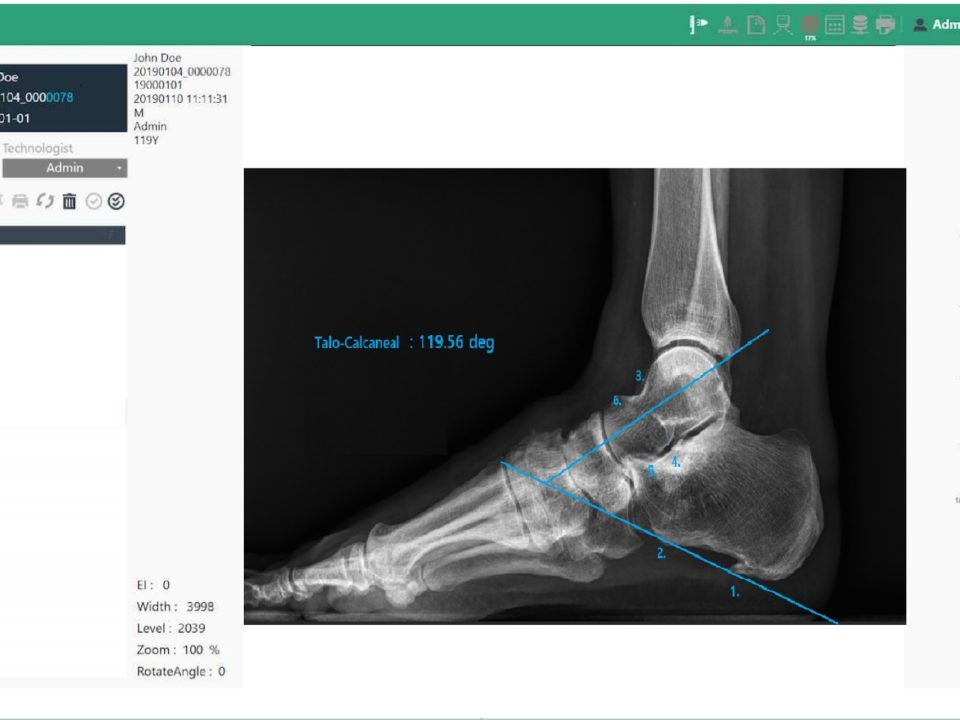 Podiatry X-Ray Analysis Software